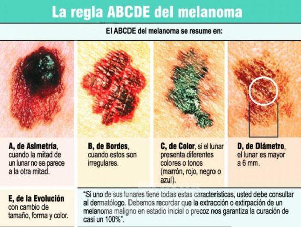 Ejemplo de Lunares Benignos y No Benigno